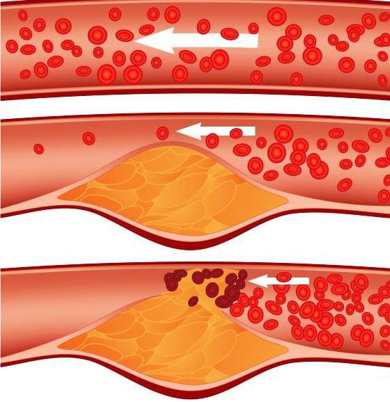 Indikacije za ribboxin ampule