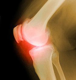 симптоми на отлагане на соли