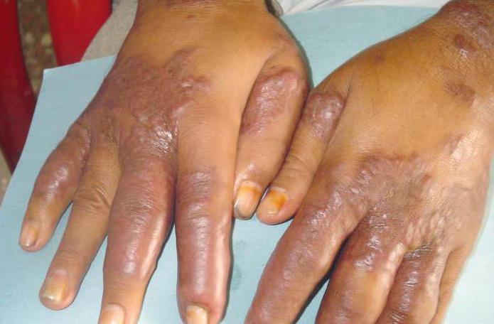 simptomi sarkoma