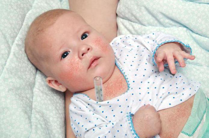 scarlattina nei bambini periodo di incubazione dei sintomi