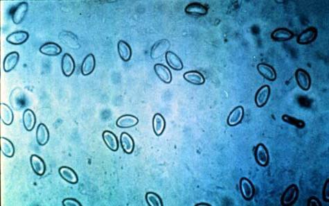 analiza blata za enterobiazo