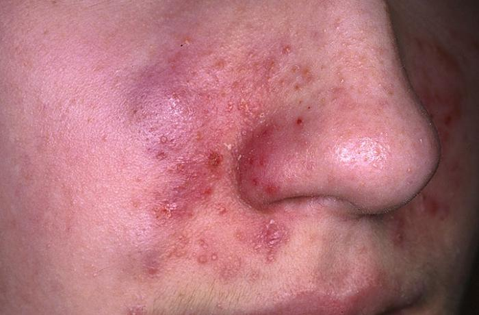 симптоми себореичног дерматитиса