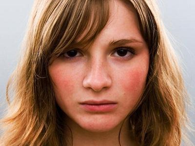 kako ukloniti crvenu boju s lica