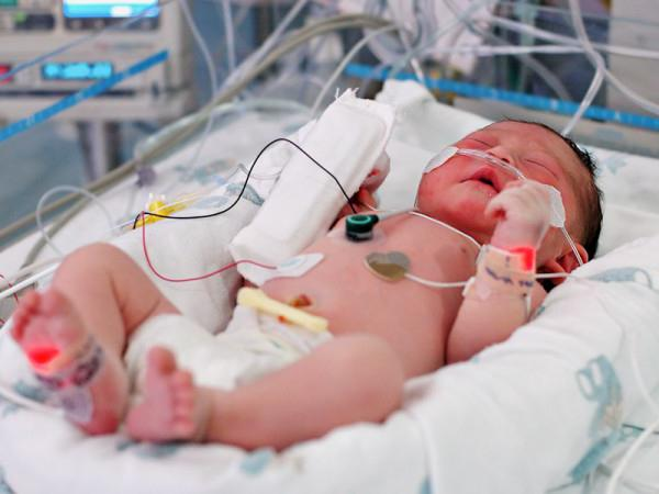 бактериален сепсис на новороденото