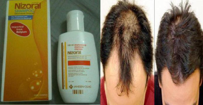 shampoo istruzioni nizoral