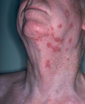 инфекция с херпес зостер