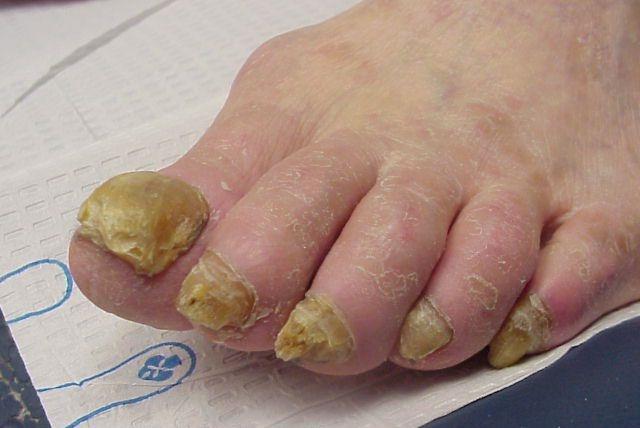 Гъбички за нокти