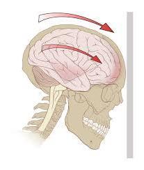 oznaki wstrząsu mózgu