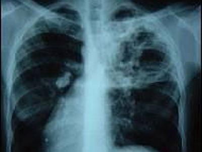 Segni di tubercolosi