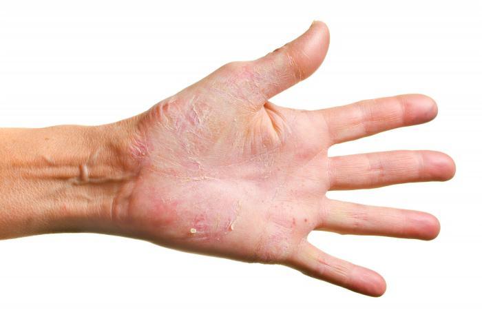 gljivica kože