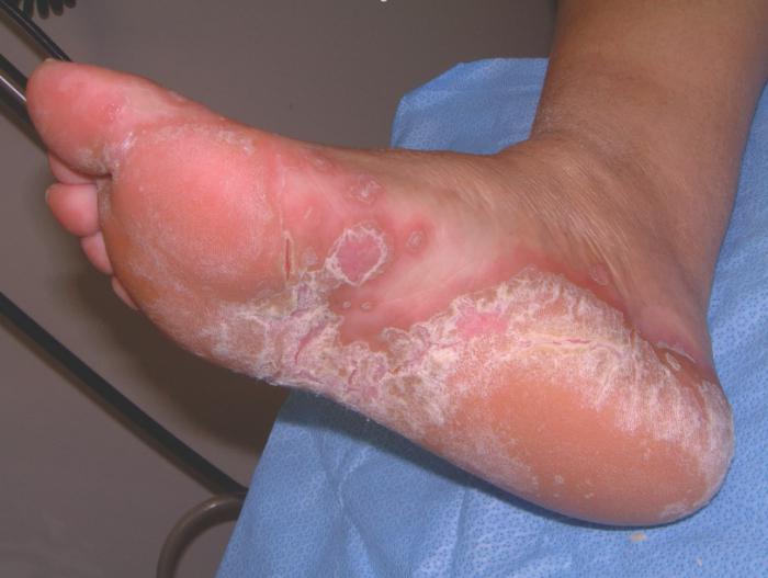gljivica nogu