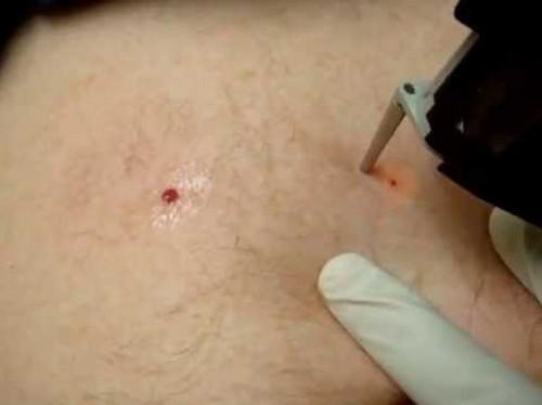 Премахване на хемангиома на кожата