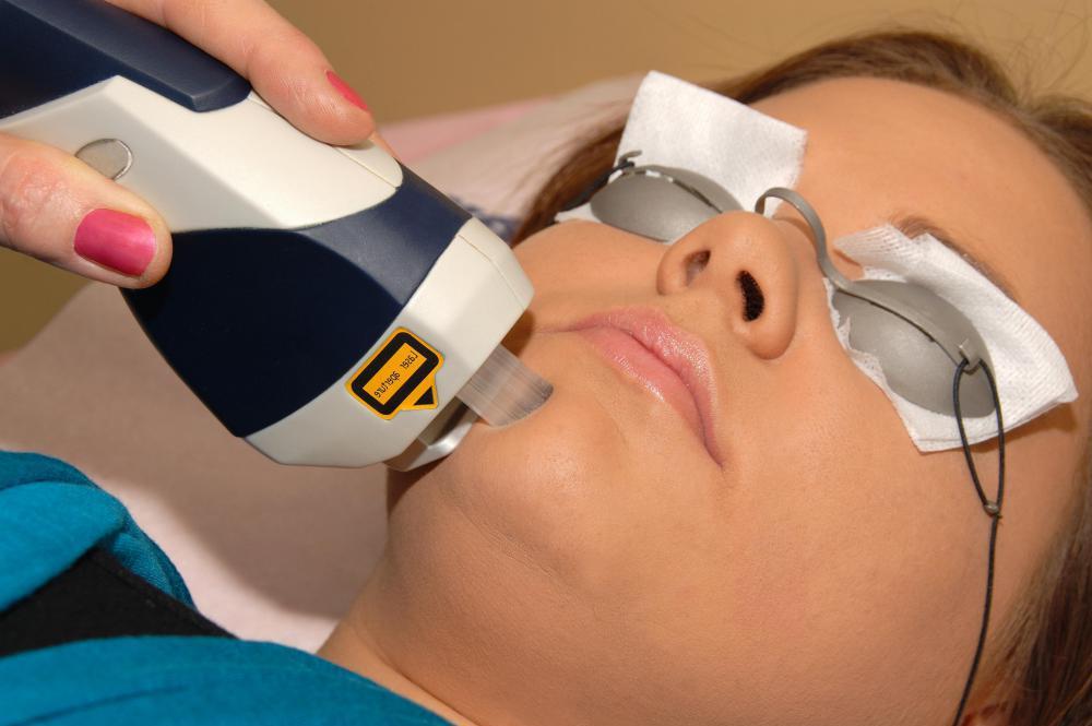 Лазерно отстраняване на кожна хемангиома