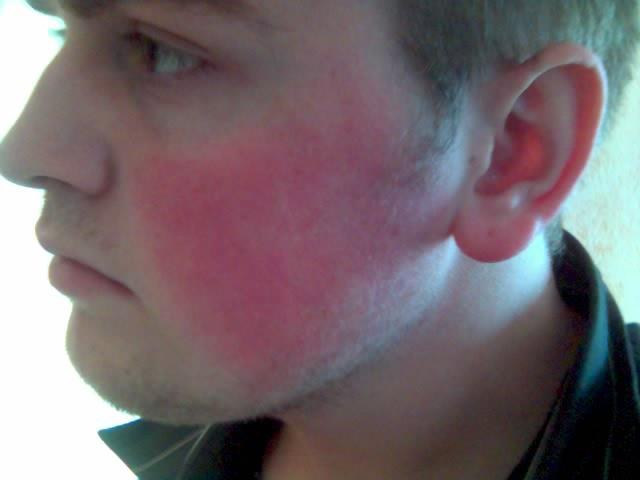 arrossamento della pelle