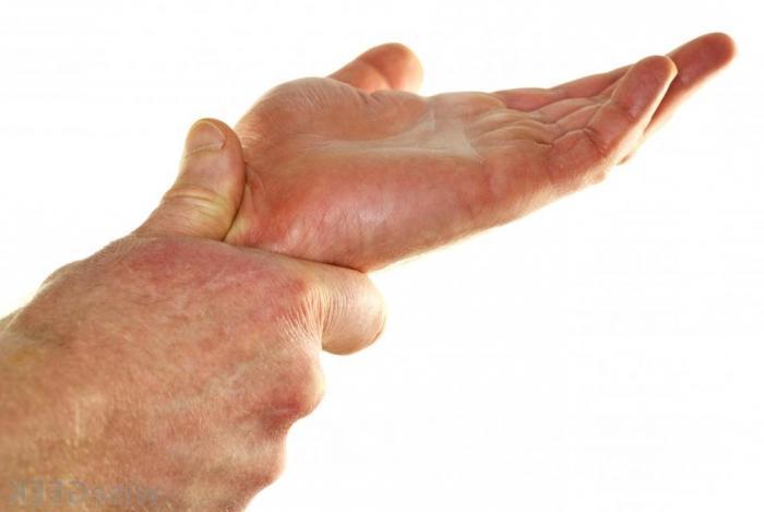 fa male la mano destra