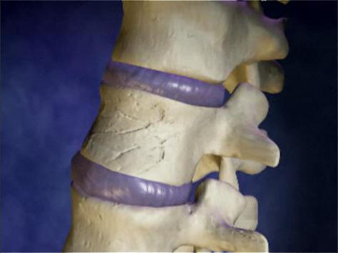 Компресионна фрактура на гръбначния стълб при деца