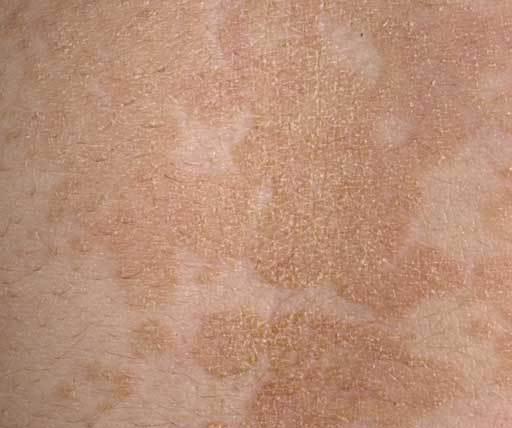 обрив по кожата под формата на петна