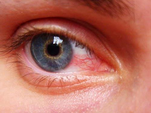 Stilla Ophthalmology