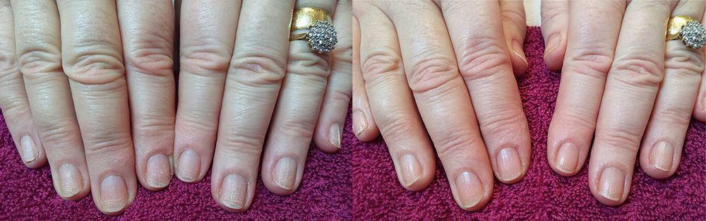 trattamento delle unghie