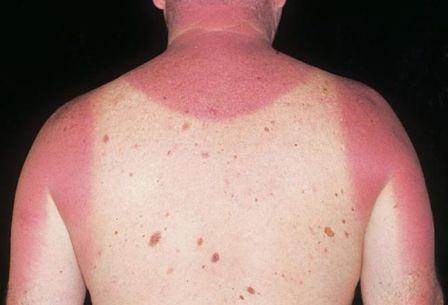 gori na kožu od sunca