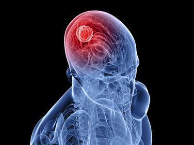 Поремећаји церебралне циркулације