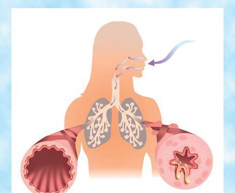 orz sintomi e trattamento