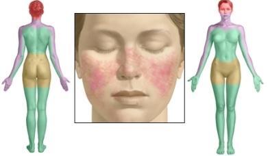 системски лупус еритематозус третман