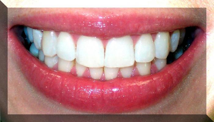 numerazione dentale in odontoiatria