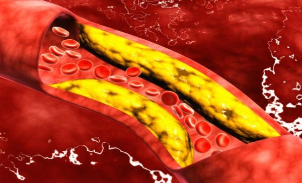 arterij in žil