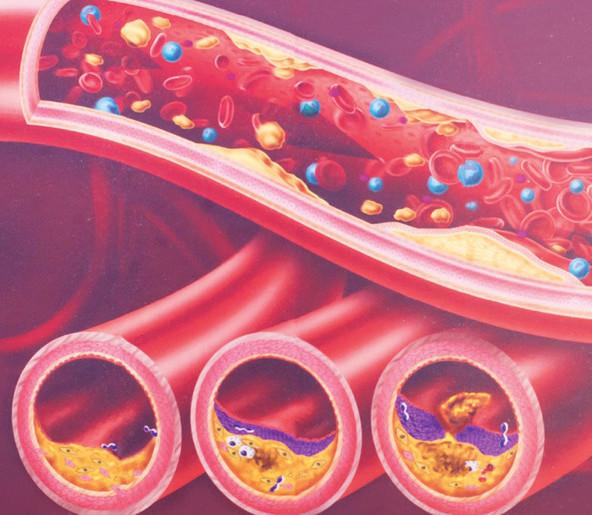 sindrom arterij