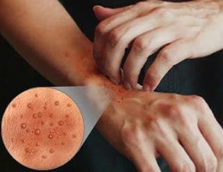 eruzione cutanea sul dorso della mano