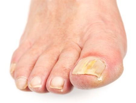 народни средства за грижа за ноктите