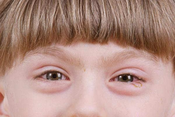 детето има водно око