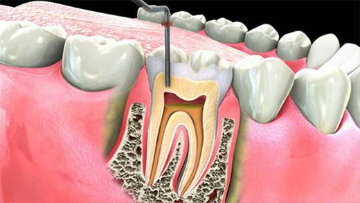 Nervi dentali