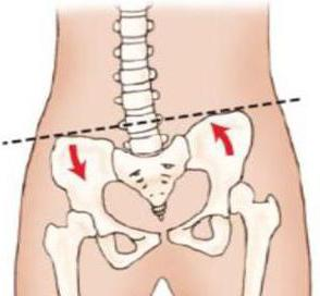 divergencija pubičnog zgloba tijekom trudnoće