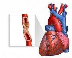 aplikacijo cardiket