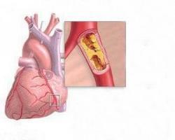cardict medicine