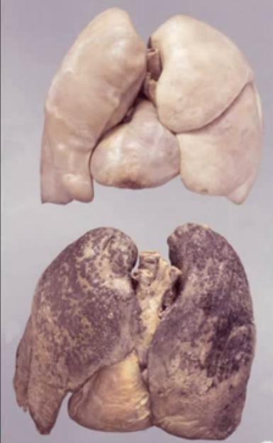 płuca po paleniu