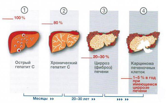 симптоми на хепатит при мъжете първи признаци на снимка
