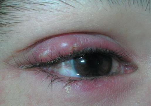 капи јечма на очима деце