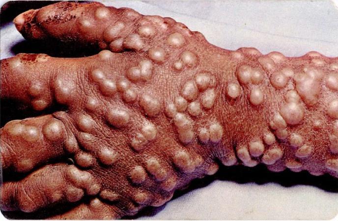 le malattie più terribili nella foto del mondo