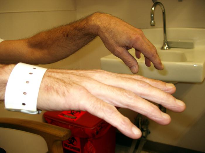 radijalni živac ruke