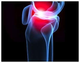 uzroci artritisa koljena