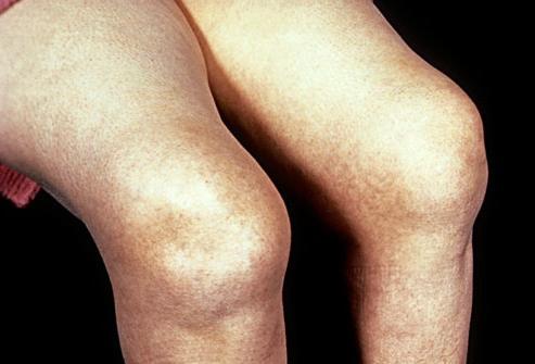 kako liječiti artritis koljena