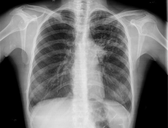 anatomická struktura lidského hrudníku