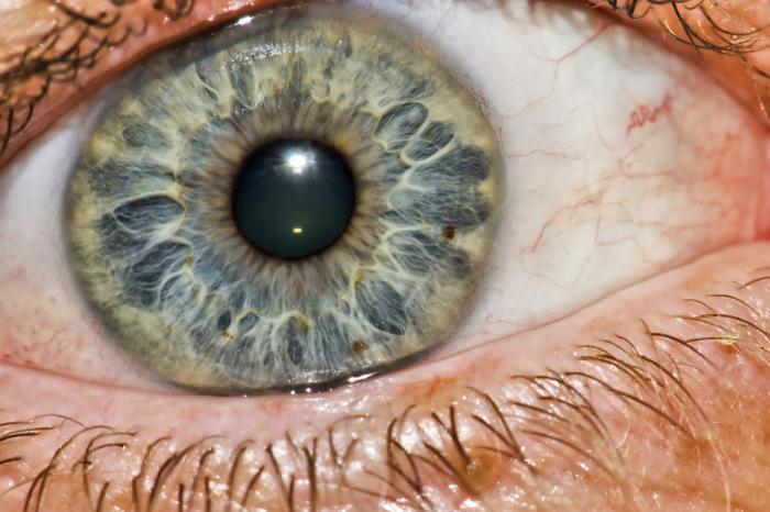 infiammazione del bulbo oculare
