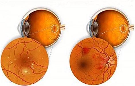 il valore del bulbo oculare