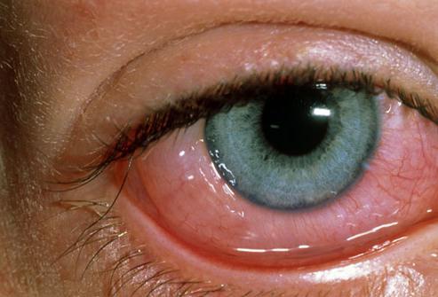 muscoli del bulbo oculare