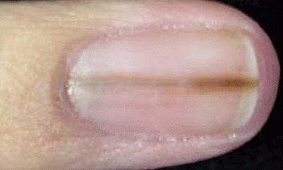 černé tečky na nehty