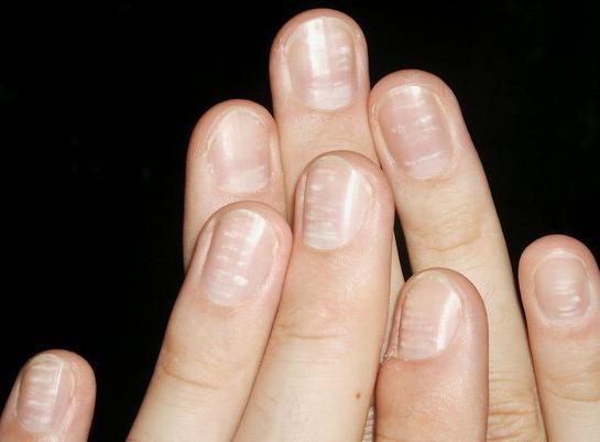 co znamenají bílé skvrny na nehty